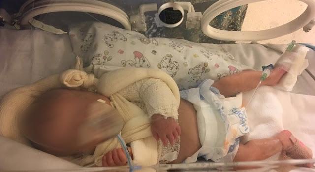 Recém-nascida tem dois braços quebrados dentro de UTI de hospital de SP