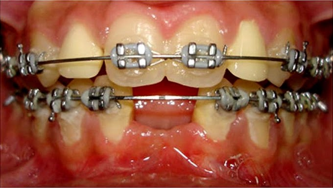 CLINICAL CASE: Management of Peg shaped lateral incisors and missing mandibular incisors using a modified T-shaped implant