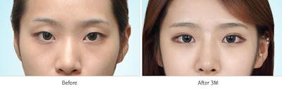 sebelum dan sesudah operasi plastik mata Korea