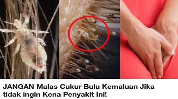 Jangan Malas Cukur Bulu Kemaluan Jika Tidak Ingin Kena Penyakit Ini!
