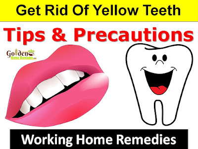 How To Get Rid Of Yellow Teeth, teeth whitening