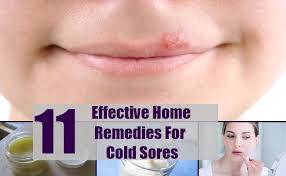 Effective Cold Sore Natural Remedies
