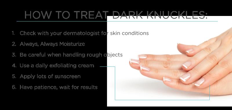 Natural Dark Spot Removal Knees