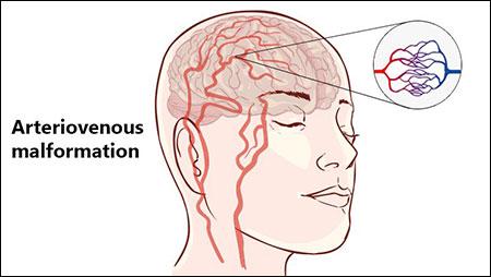 Arteriovenous Malformation, Herbal Remedies, Ayurveda, Treatment