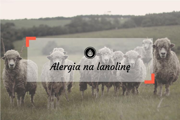 Alergia na lanolinę - czego unikać, gdzie znajdziesz lanolinę