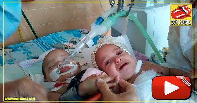 Así están hoy las gemelas separadas en Maracaibo