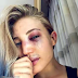 MMA fighter shares picture of her battered face post-match