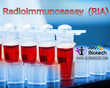 Radioimmunoassay  ( RIA ), www.arvbiotech.com