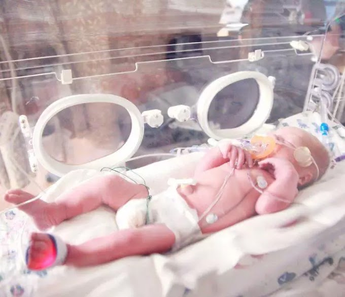 What is considered a premature baby?