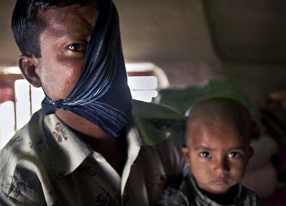 Diserang Harimau, Wajah Pria Ini Tinggal Setengah Lagi