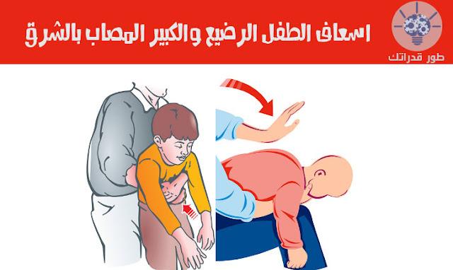 اسعاف الطفل الرضيع والكبير المصاب بالشرق