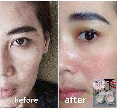 Cream Penghilang Flek Hitam Akibat Genetik/Keturunan