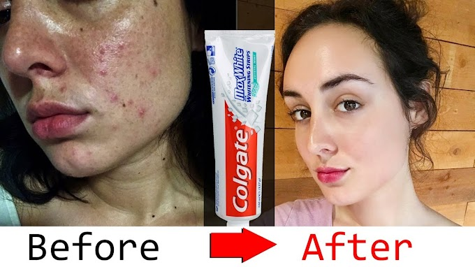 HOW TO USE COLGATE AND VASELINE TO GET RID OF DARK SPOTS ON THE FACE