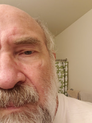 With my glassses on the scar is not noticeable and the beard covers my major scar just below my lower lip.