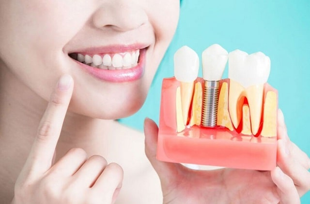 eliminate gaps in teeth dental implants