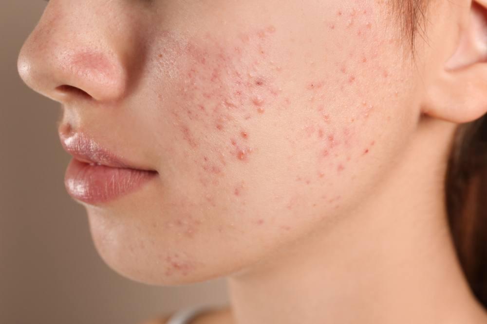 Cần phân biệt Purging (đẩy mụn) hay Break Out (kích ứng) để có biện pháp tiếp theo cho làn da