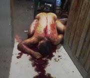 Mais um assassinado a tiros no município de Lago da Pedra-MA.