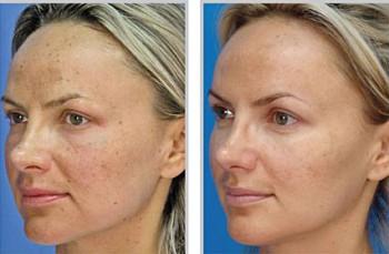 Micro Laser Peel For Good Looking Skin