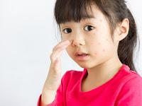 Ketahui Alergi Pada Anak