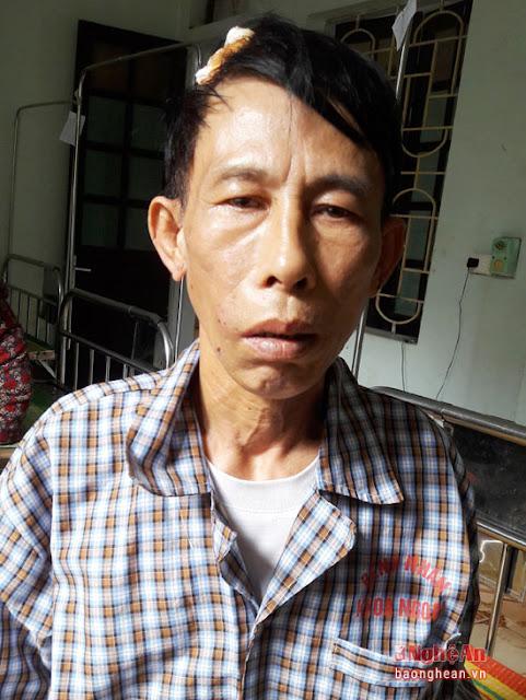 Linh mục Đặng Hữu Nam đứng trước nguy cơ bị khởi tố vì tội đánh người gây thương tích