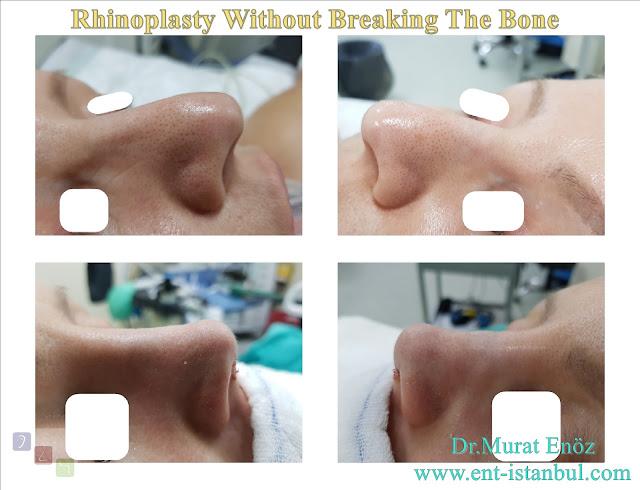 rhinoplasty without bone breaking