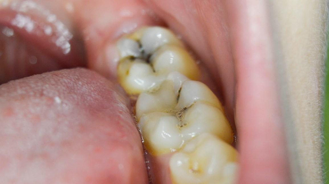 تسوس الأسنان Dental cavities
