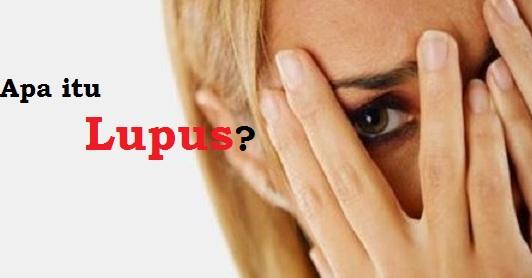 Memang penyakit lupus ini tak setenar penyakit kanker Apa itu Lupus?