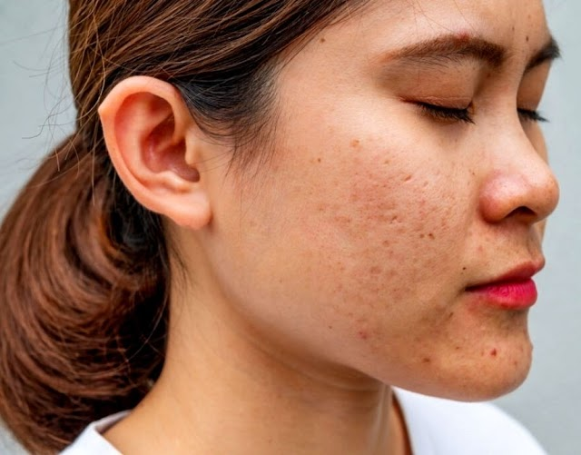 17 The Best Primer for Large Pores In 2021   Incredible Face Primers