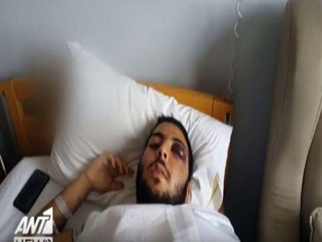 AΓΡΙΟΣ ΞΥΛΟΔΑΡΜΟΣ 17χρονου από πορτιέρη μπαρ στο Γκάζι! Του έσπασε τα κόκαλα στο πρόσωπο (ΒΙΝΤΕΟ ΣΟΚ)