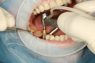 DENTAL-IMPLANT-PLACEMENT