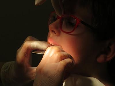العمر المناسب لعرض الطفل على طبيب الأسنان