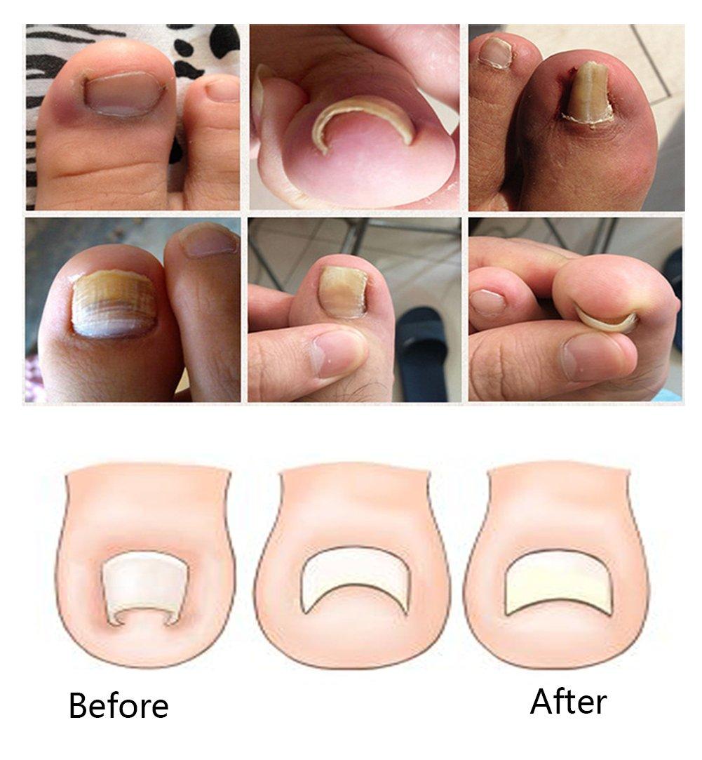 Toe Nail Correction Tool