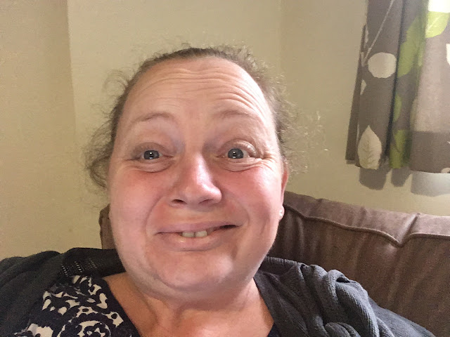 44 year old woman with bells palsy, after 11 years