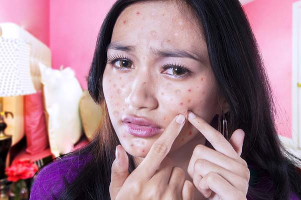 How to Remove Pimple