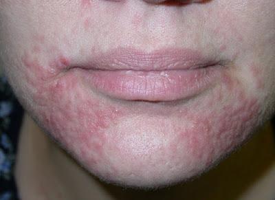 Dermatitis Perioral