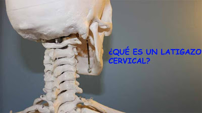 que es un latigazo cervical