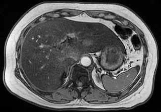 Karaciğer yağlanması