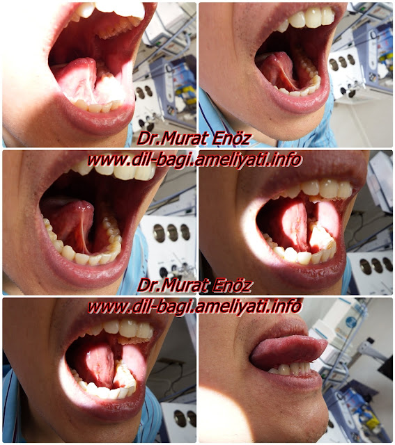 Dil altı bağı ameliyatı - Dil bağı ameliyatı nasıl yapılır? - Dil bağı nasıl kesilir? - Dil bağı kesilmesi - Lingual frenektomi - Hipertrofik lingual frenulum plastiği