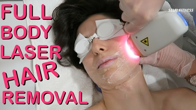 Laser treatment to clean facial and body hair