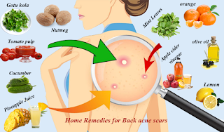 How to Remove Acne Scars on Back Using Lemon Juice