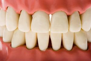 perte osseuse au niveau des dents