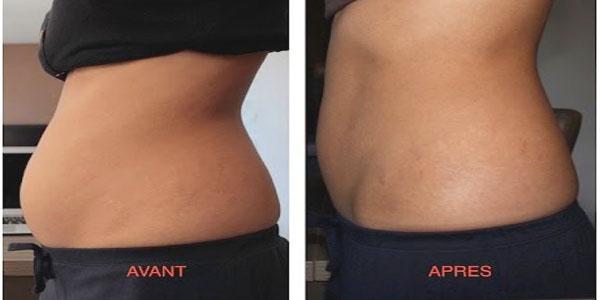 Régime : comment perdre 4 kg dans une semaine (Sans régime et Sans sport)