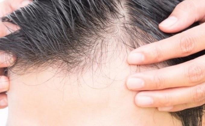 Πώς να ξαναβγάλεις μαλλιά μέσα σε 10 μέρες (θα χρειαστείς μόνο 3 υλικά)!