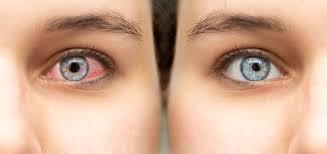 Pour soulager les yeux enflammés, nous conseillons ...