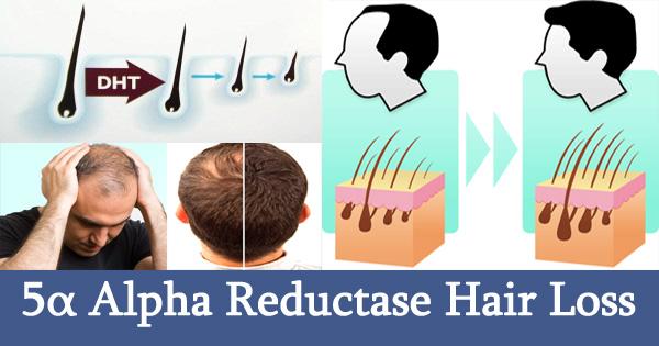 5α Alpha Reductase Hair Loss