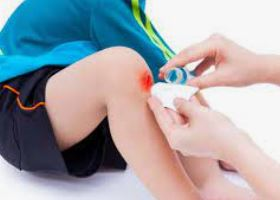 علاج الجروح السطحية للأطفال