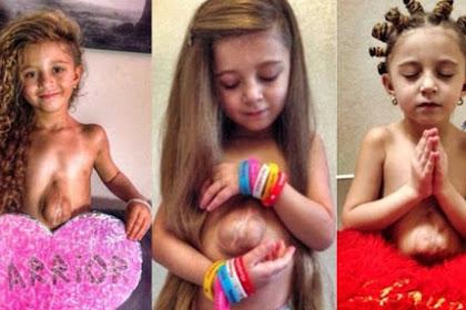 Luar Biasa, Walau Jantungnya berada di Luar, Gadis Kecil Ini Tetap Bisa Hidup