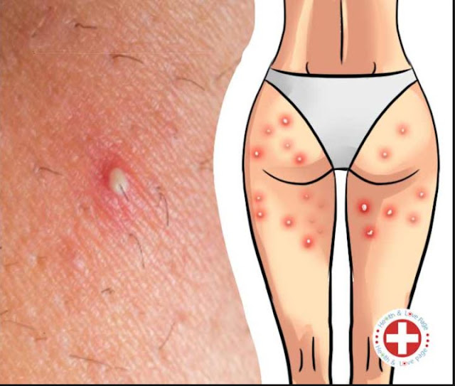 GET RID OF BOILS ON YOUR THIGHS AND BUTTOCKS || Health Care Solutions,