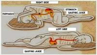 Κοιμάσαι ξαπλωμένος στο αριστερό πλευρό; Δες τι αλλάζει στην υγεία σου