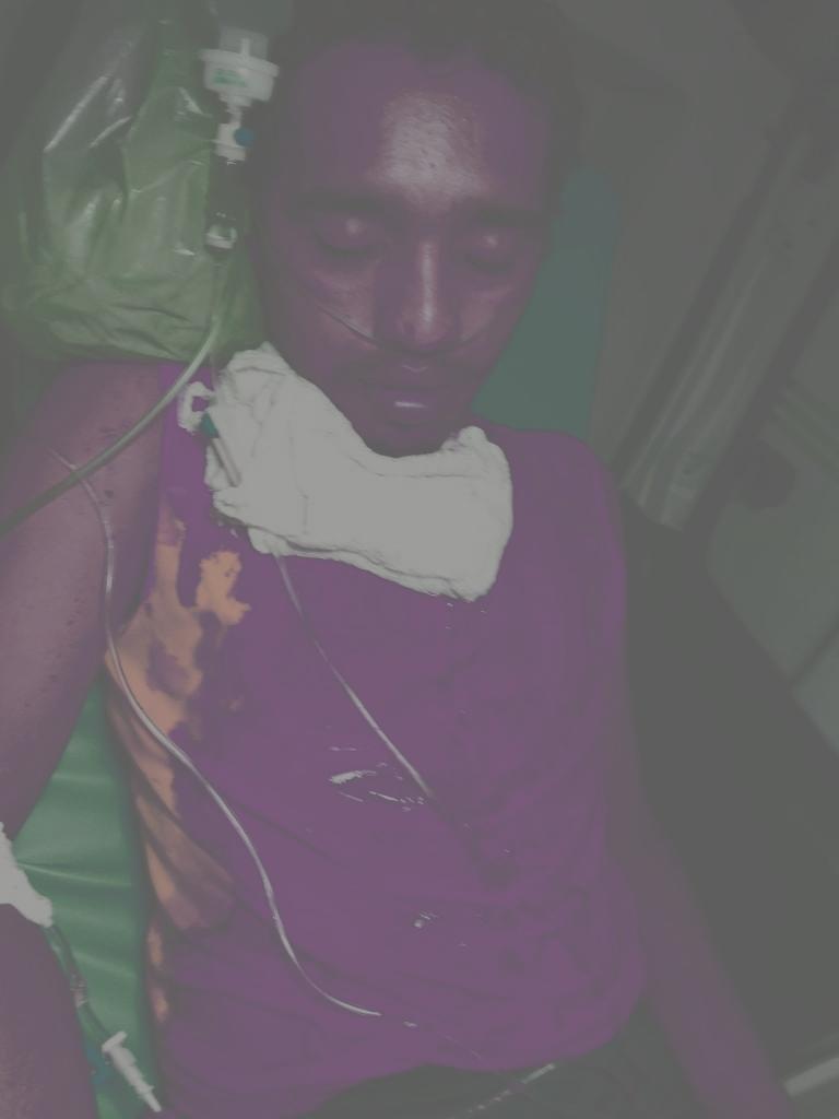 Homem corta o pescoço do próprio filho na zona rural de Pedreiras.